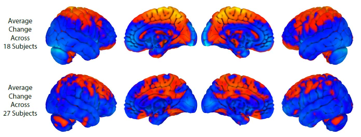 Astronauts-brains-change-shape-during-spaceflight-orig3-20170131