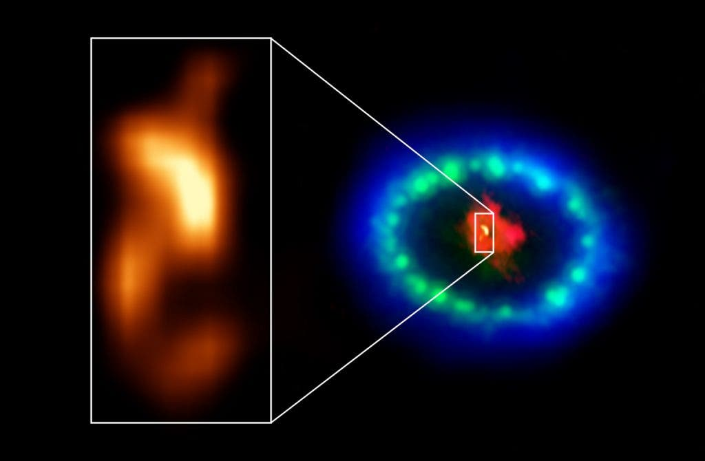 """hot """"blob"""" in the dusty core of Supernova 1987A"""